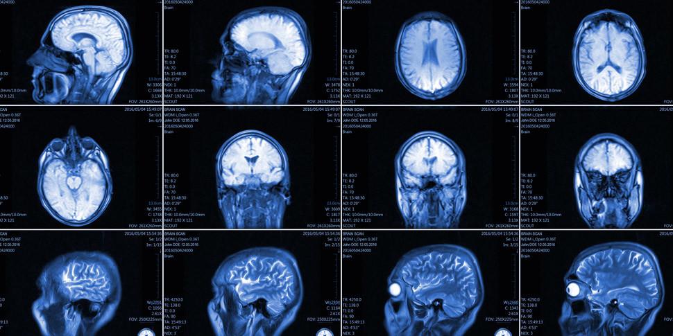 Ученые скрыли смерть человека с оживленным мозгом